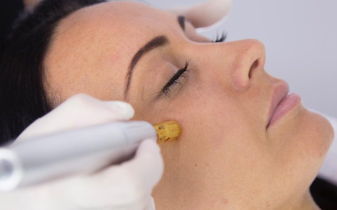Skin Needling Vs. Botox in Tweed Heads