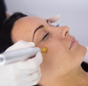 cosmetic skin clinic needling tweed heads